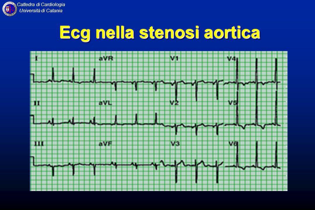 Ecg nella stenosi aortica