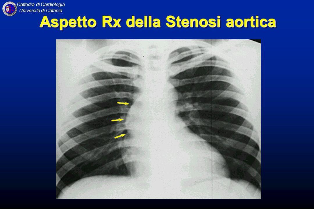 Aspetto Rx della Stenosi aortica
