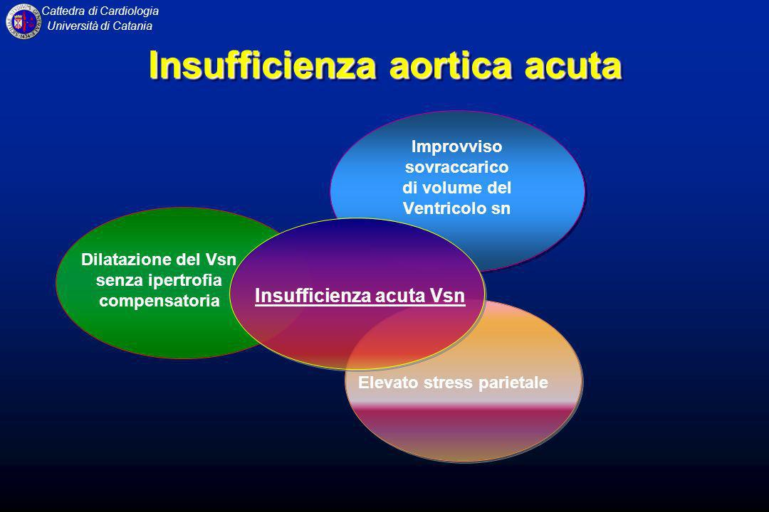 Insufficienza aortica acuta