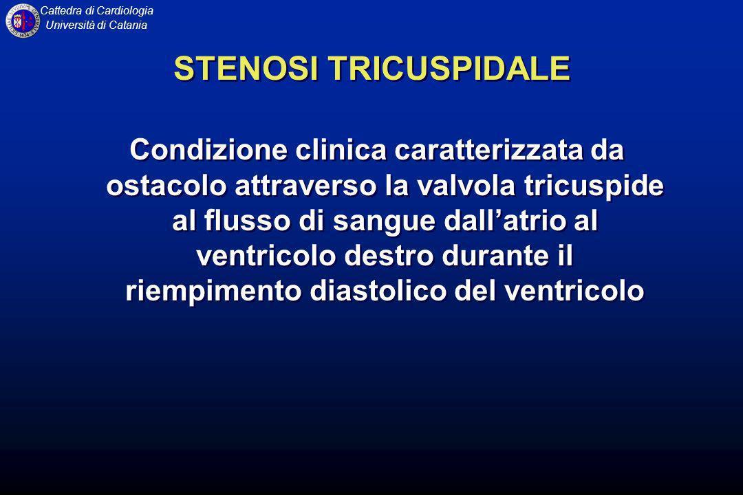 STENOSI TRICUSPIDALE
