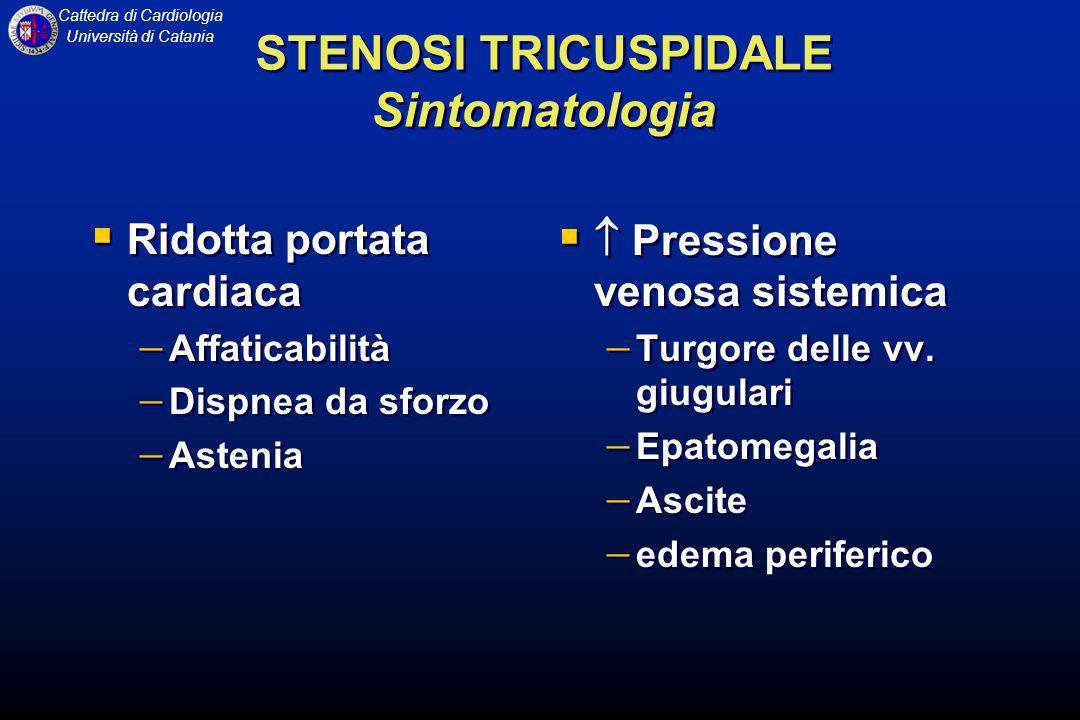 STENOSI TRICUSPIDALE Sintomatologia