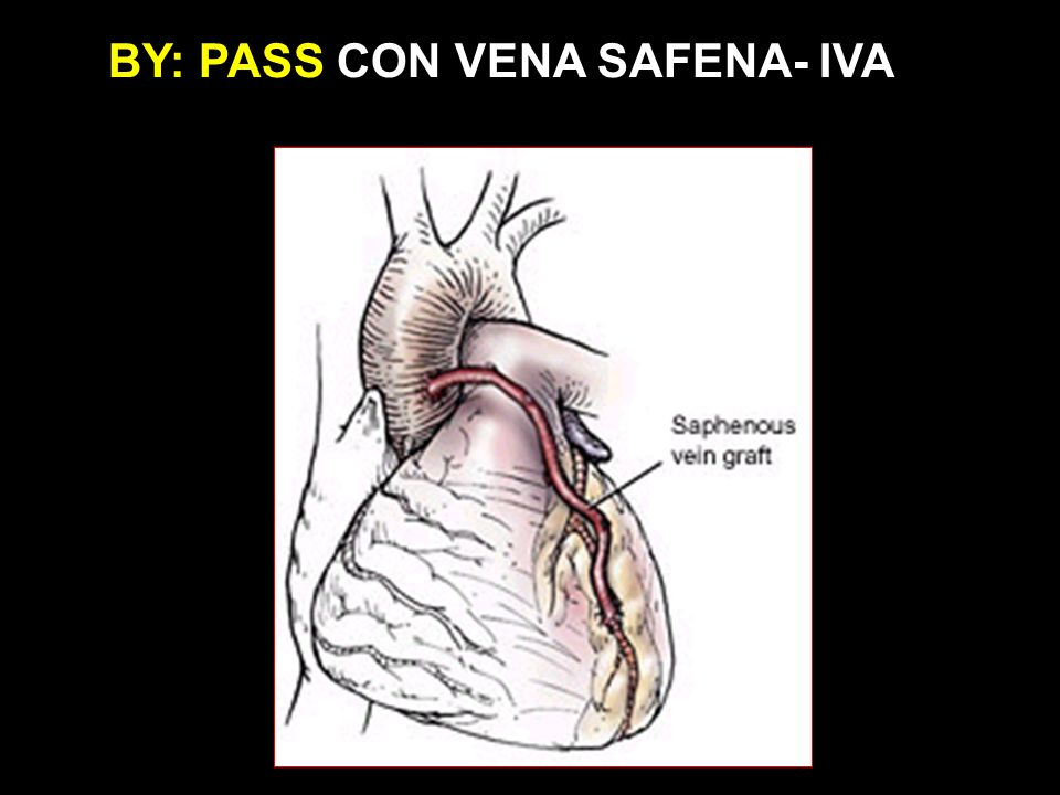 BY: PASS CON VENA SAFENA- IVA