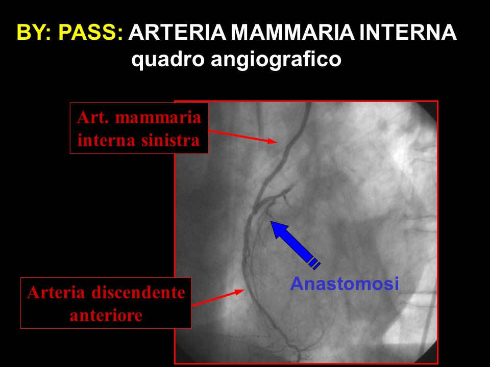 BY: PASS: ARTERIA MAMMARIA INTERNA