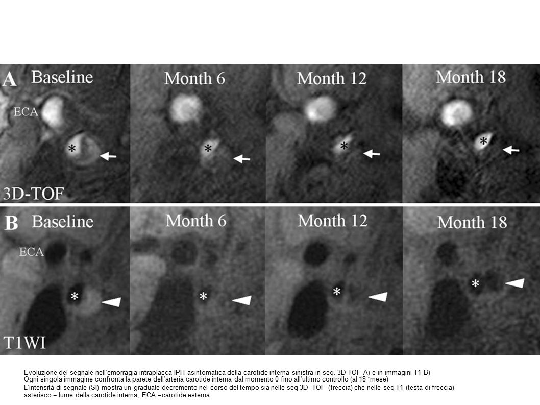 Evoluzione del segnale nell emorragia intraplacca IPH asintomatica della carotide interna sinistra in seq. 3D-TOF A) e in immagini T1 B)