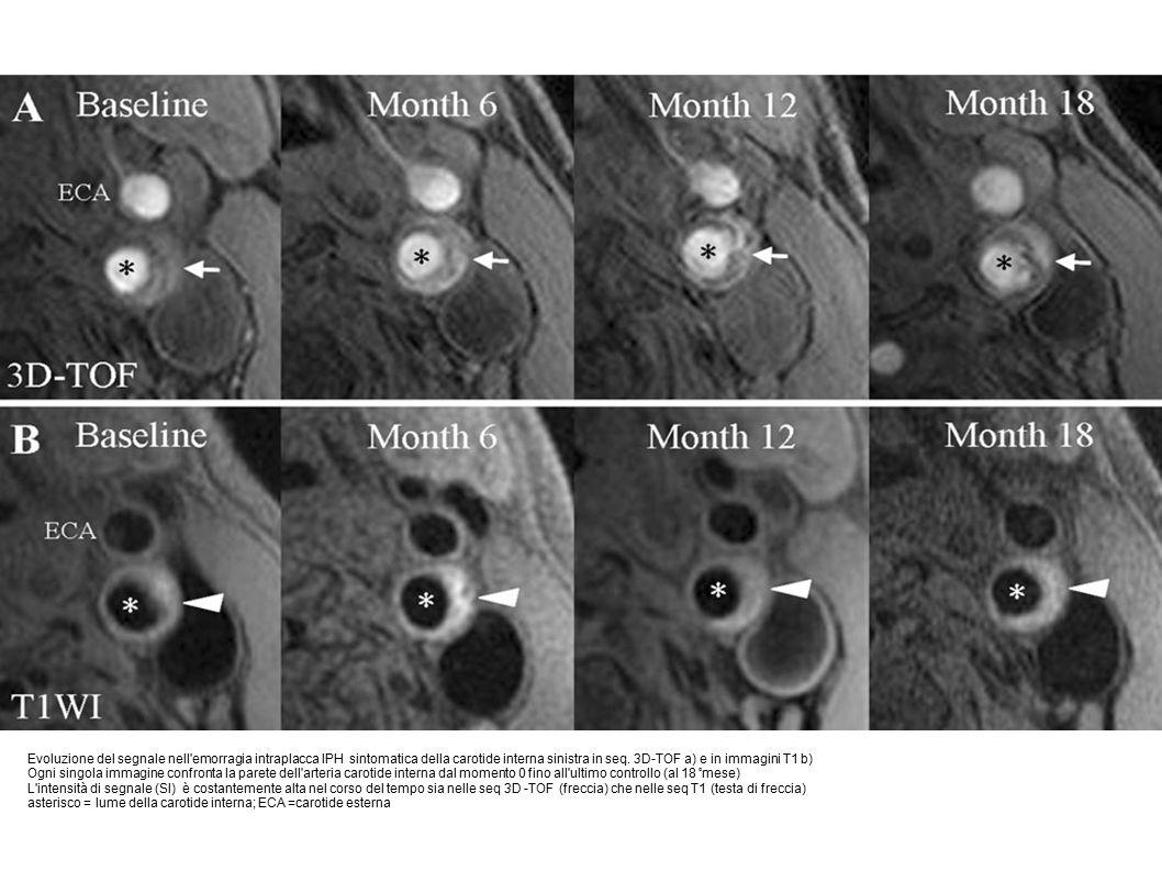 Evoluzione del segnale nell emorragia intraplacca IPH sintomatica della carotide interna sinistra in seq. 3D-TOF a) e in immagini T1 b)