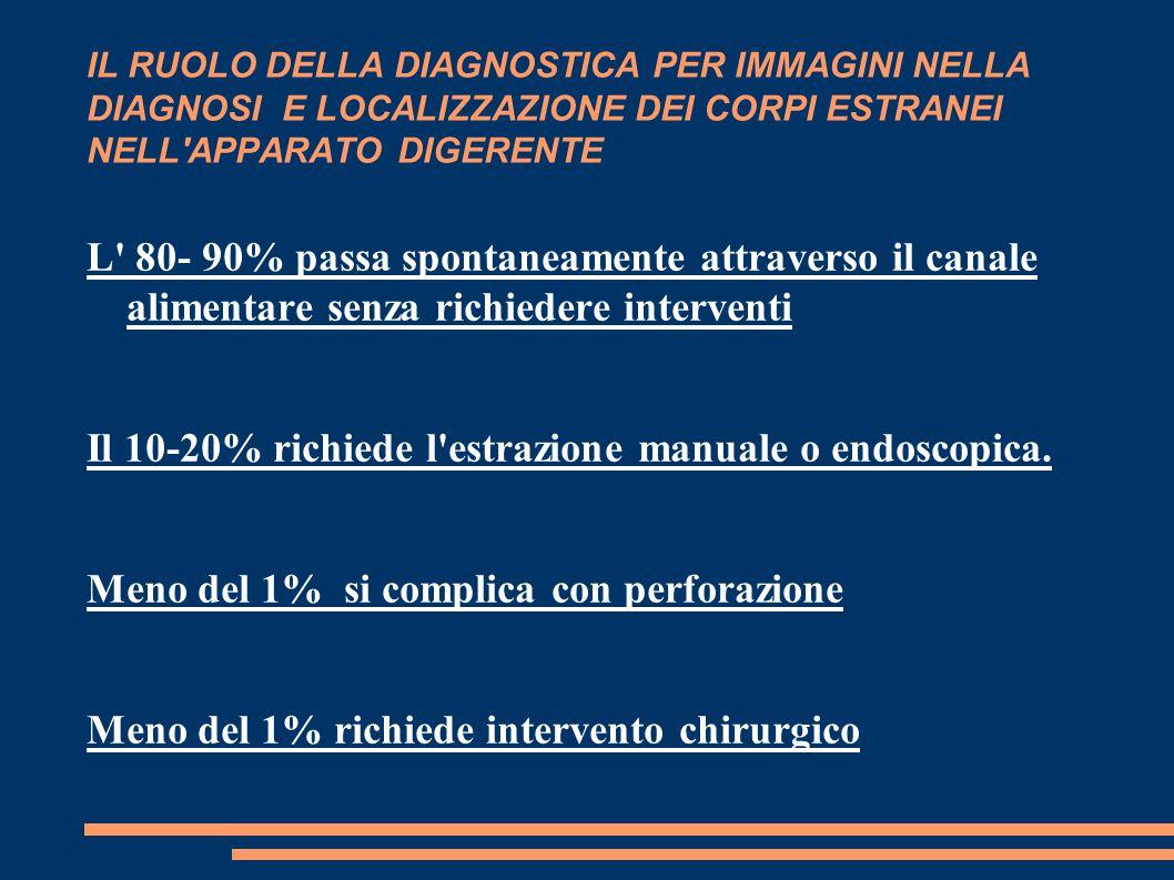 Il 10-20% richiede l estrazione manuale o endoscopica.