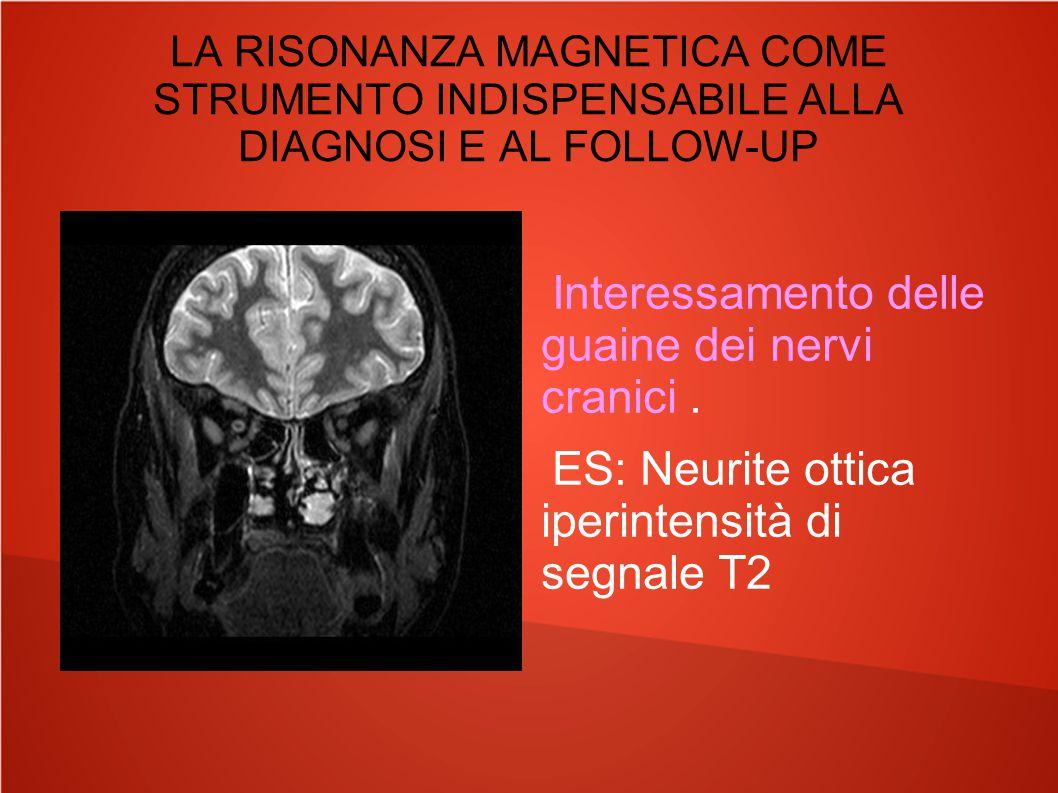 Interessamento delle guaine dei nervi cranici .