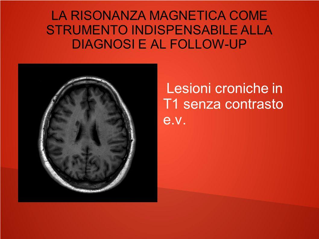 Lesioni croniche in T1 senza contrasto e.v.