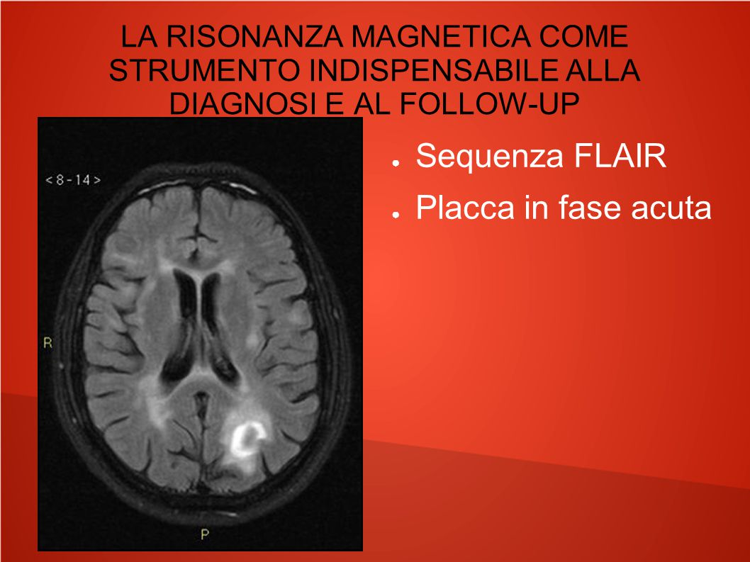 Sequenza FLAIR Placca in fase acuta