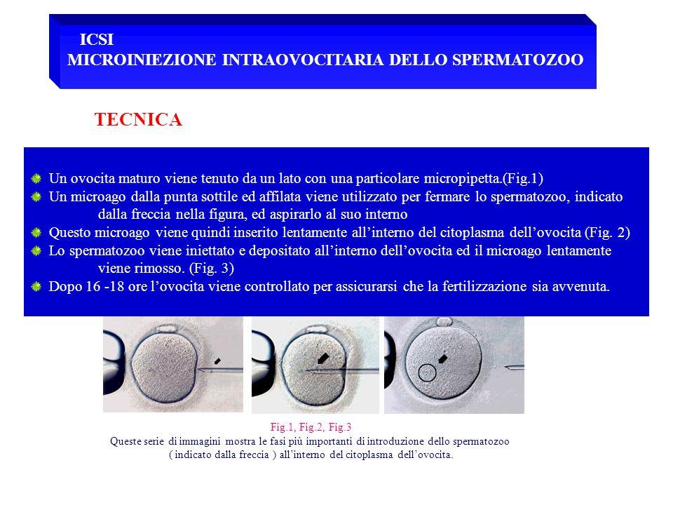 TECNICA ICSI MICROINIEZIONE INTRAOVOCITARIA DELLO SPERMATOZOO