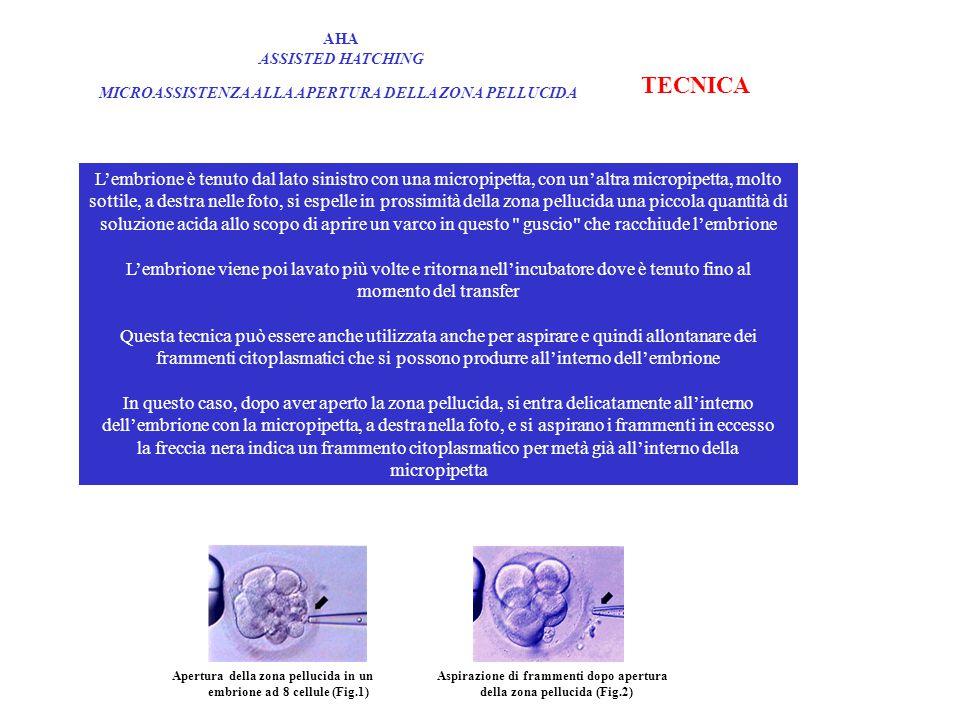 AHA ASSISTED HATCHING MICROASSISTENZA ALLA APERTURA DELLA ZONA PELLUCIDA