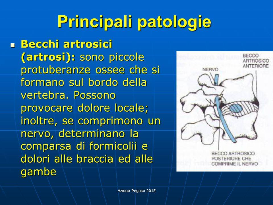 Principali patologie