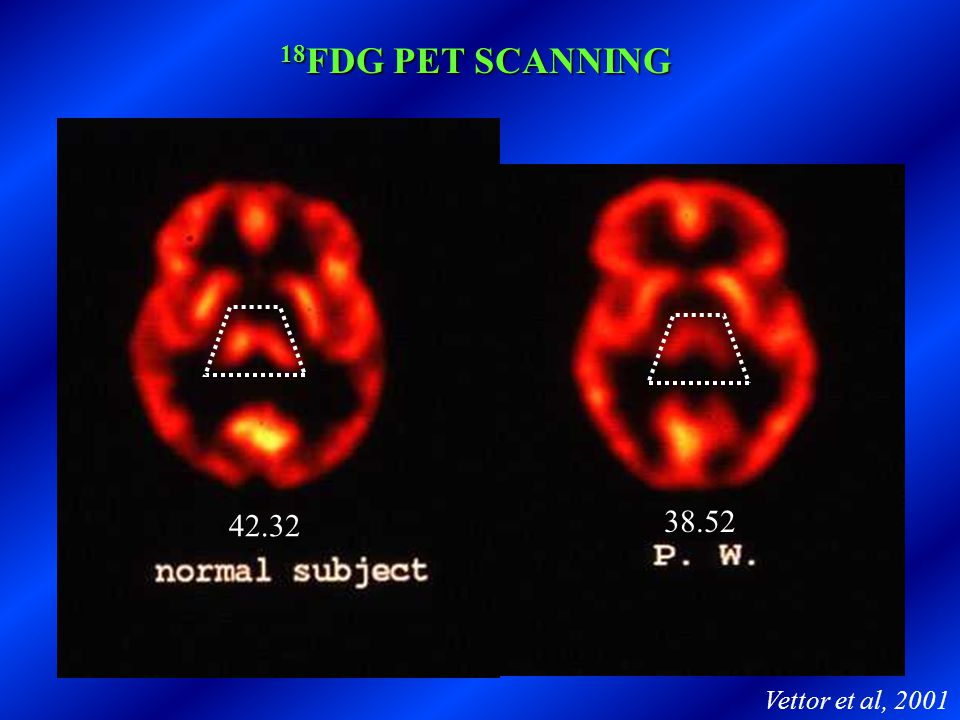 18FDG PET SCANNING 42.32 38.52 Vettor et al, 2001