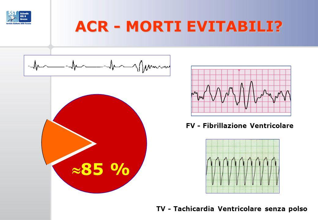 TV - Tachicardia Ventricolare senza polso