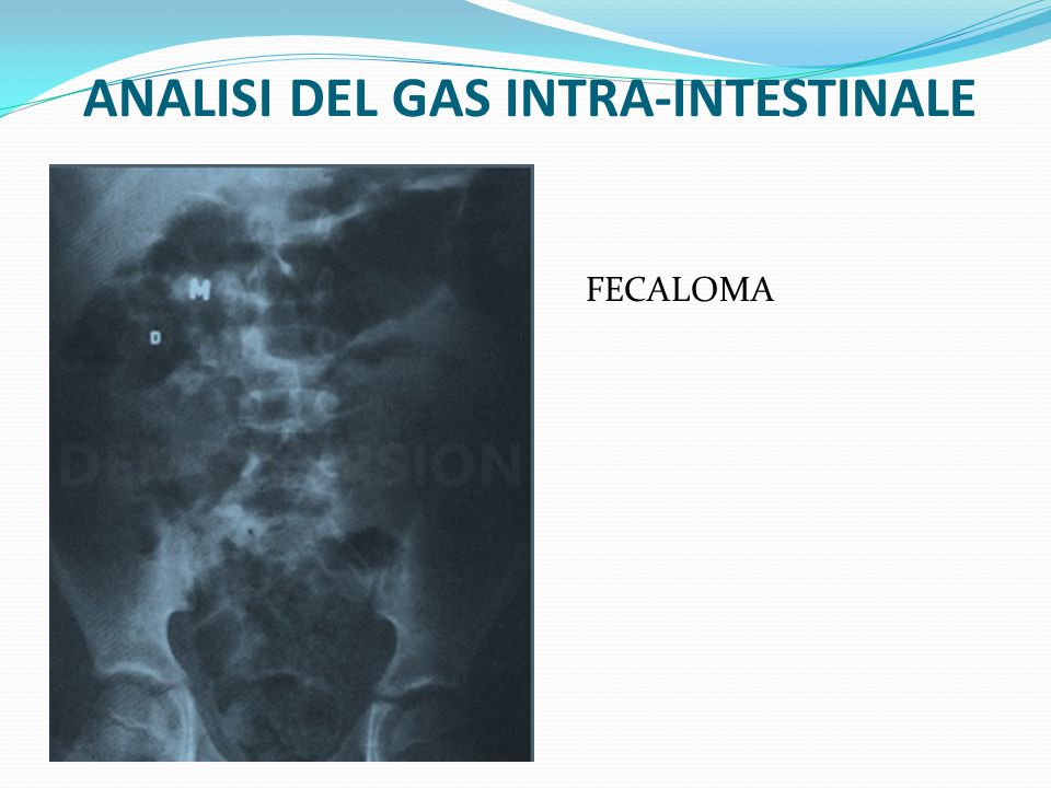 ANALISI DEL GAS INTRA-INTESTINALE