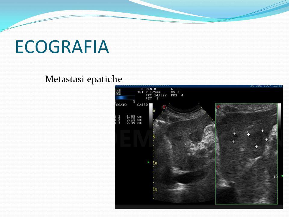 ECOGRAFIA Metastasi epatiche