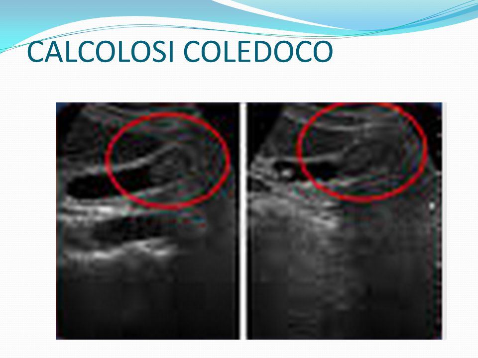 CALCOLOSI COLEDOCO