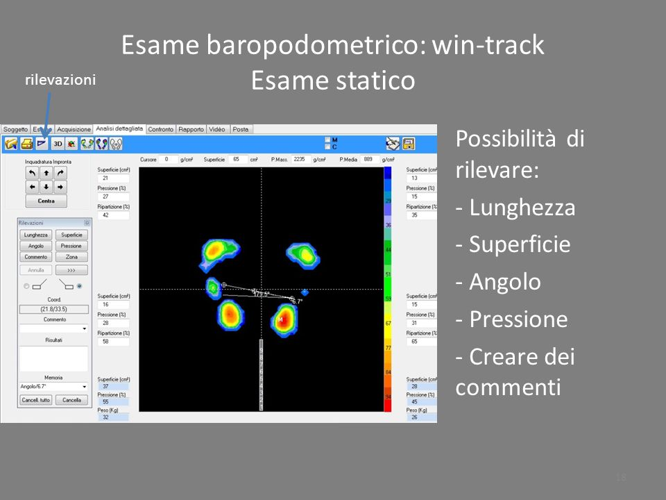 Esame baropodometrico: win-track Esame statico