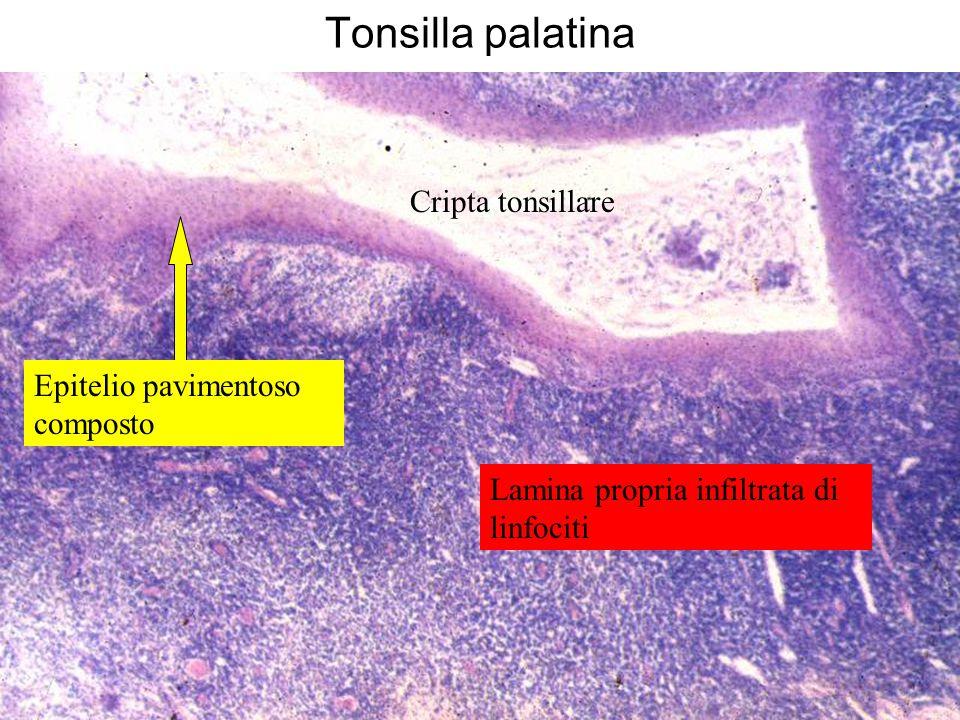 Tonsilla palatina Cripta tonsillare Epitelio pavimentoso composto