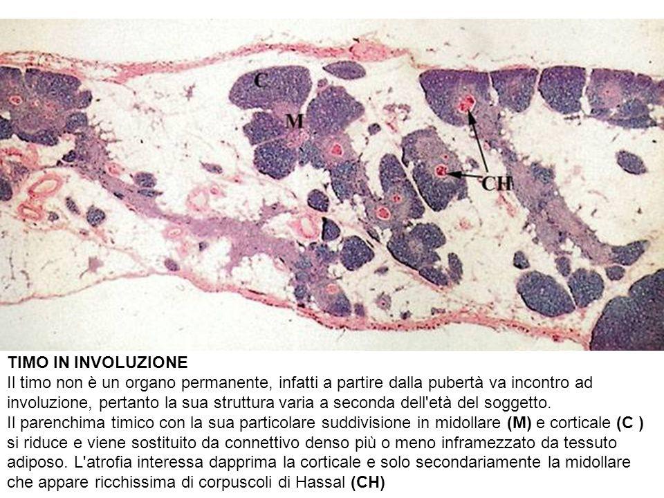 TIMO IN INVOLUZIONE Il timo non è un organo permanente, infatti a partire dalla pubertà va incontro ad involuzione, pertanto la sua struttura varia a seconda dell età del soggetto.