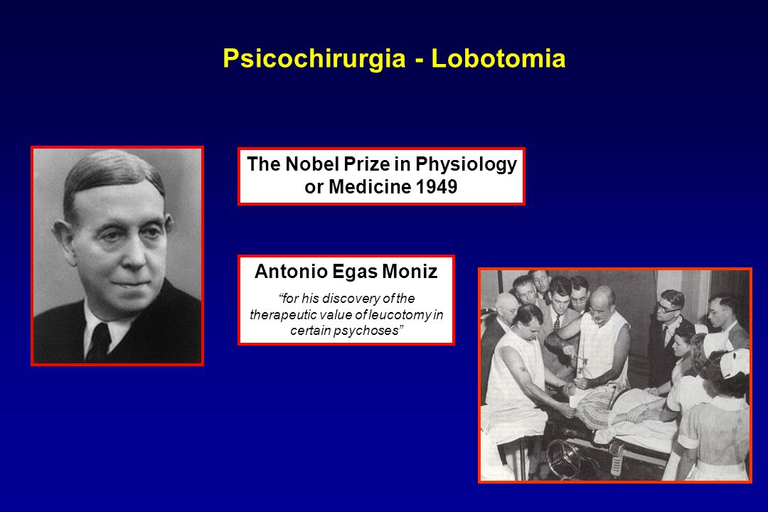 Psicochirurgia - Lobotomia