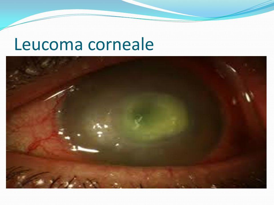 Leucoma corneale