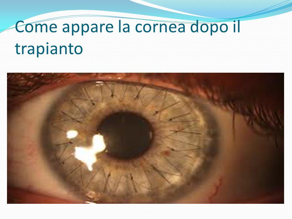 Come appare la cornea dopo il trapianto
