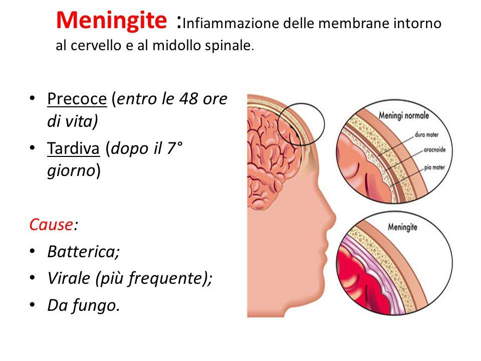 Meningite :Infiammazione delle membrane intorno al cervello e al midollo spinale.