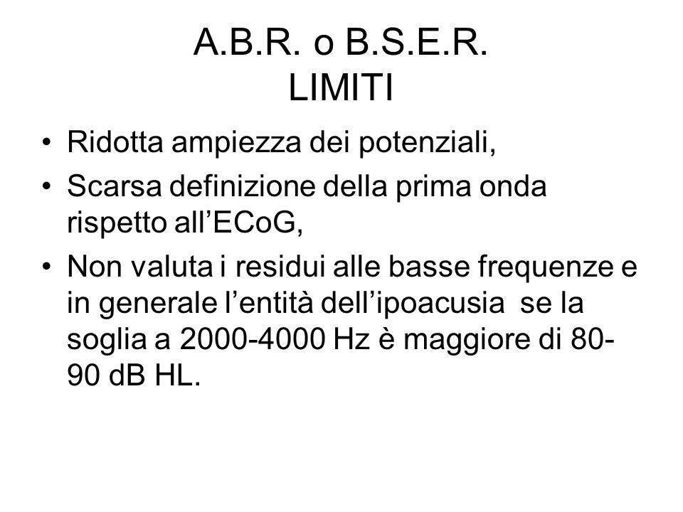 A.B.R. o B.S.E.R. LIMITI Ridotta ampiezza dei potenziali,