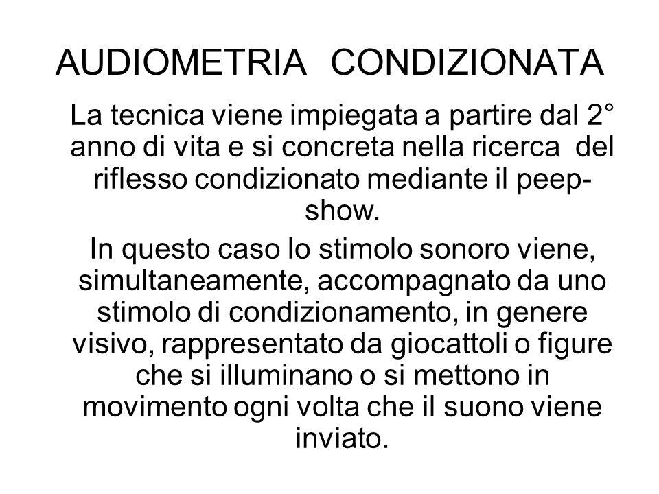 AUDIOMETRIA CONDIZIONATA