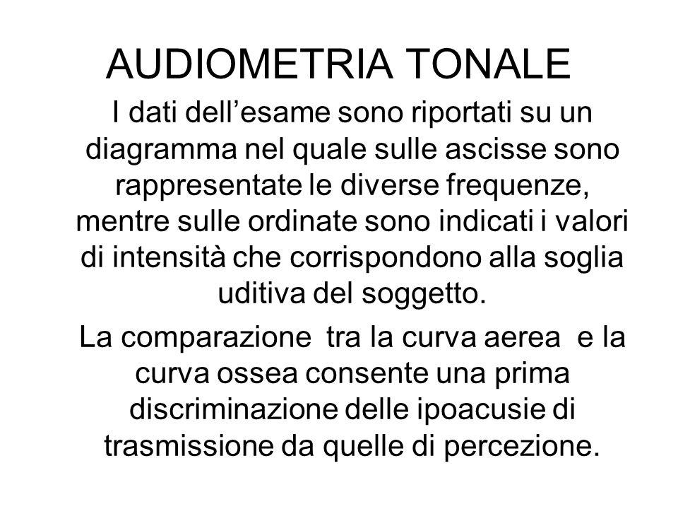AUDIOMETRIA TONALE