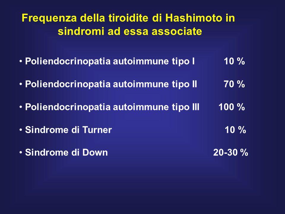 Frequenza della tiroidite di Hashimoto in sindromi ad essa associate