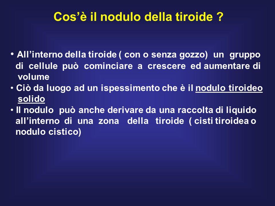 Cos'è il nodulo della tiroide