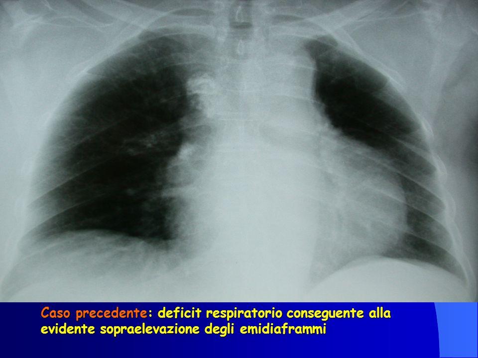 Caso precedente: deficit respiratorio conseguente alla evidente sopraelevazione degli emidiaframmi