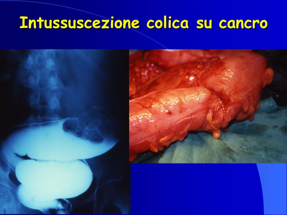 Intussuscezione colica su cancro