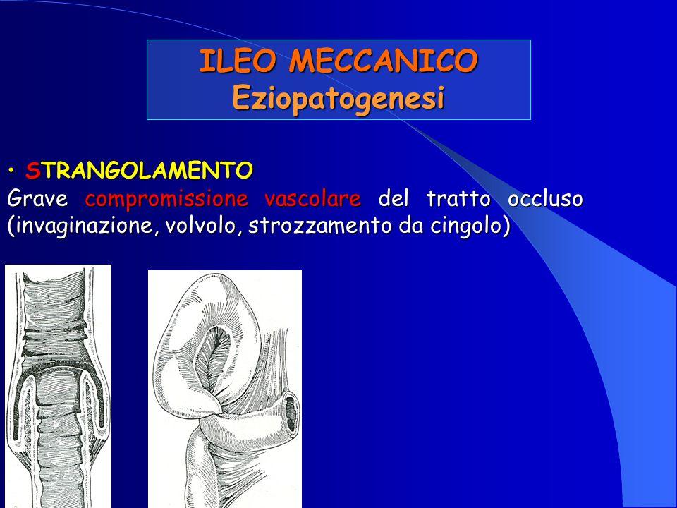 ILEO MECCANICO Eziopatogenesi