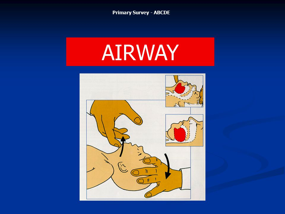 Primary Survey - ABCDE AIRWAY