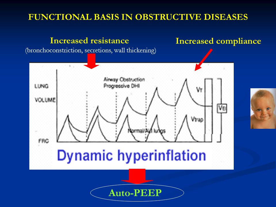 Auto-PEEP FUNCTIONAL BASIS IN OBSTRUCTIVE DISEASES