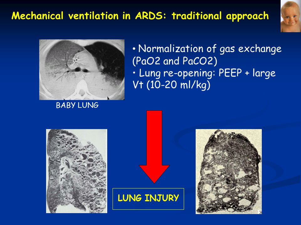 Mechanical ventilation in ARDS: traditional approach