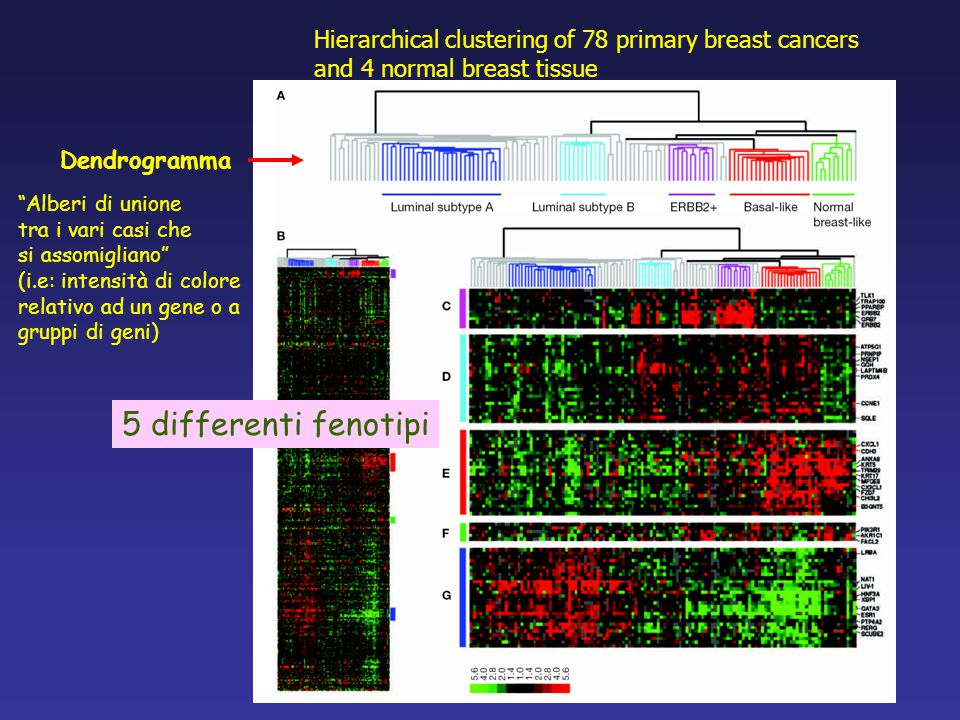 Hierarchical clustering of 78 primary breast cancers