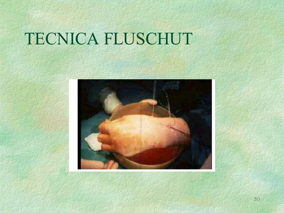 TECNICA FLUSCHUT