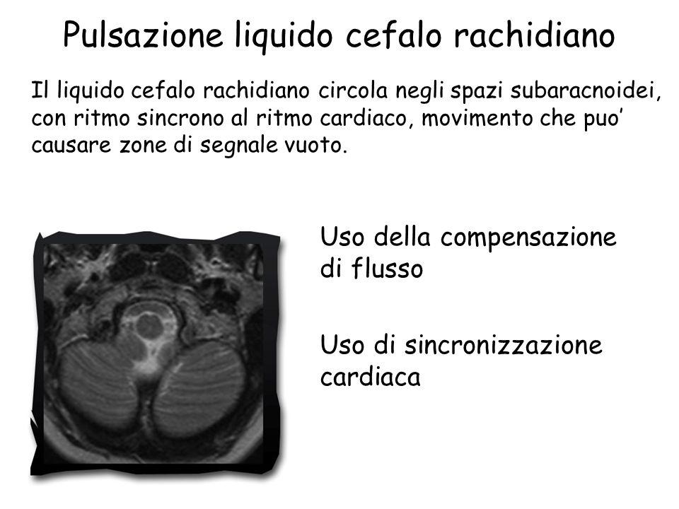 Pulsazione liquido cefalo rachidiano