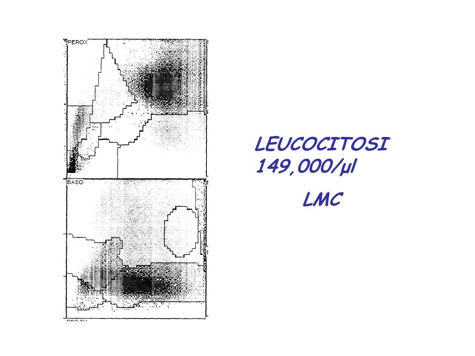 LEUCOCITOSI 149,000/μl LMC