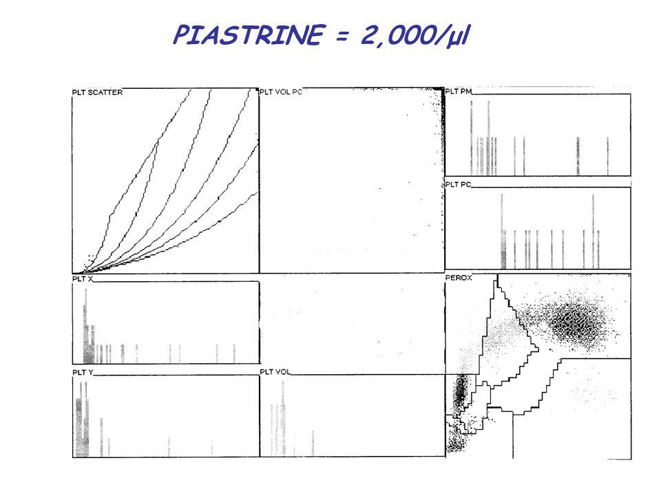 PIASTRINE = 2,000/μl