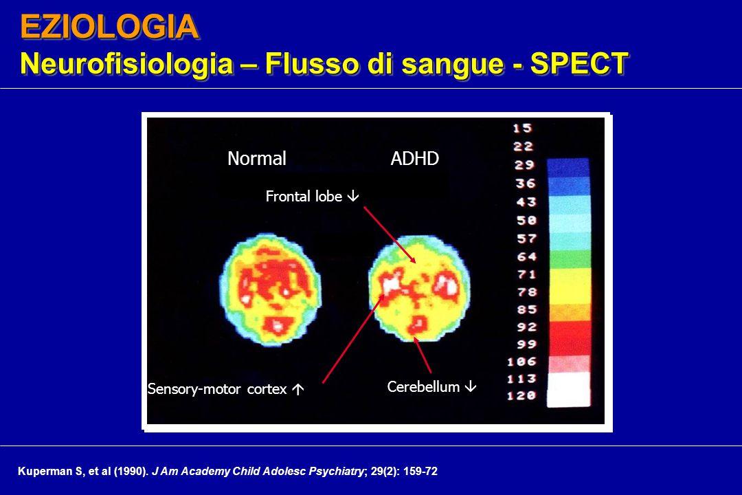 EZIOLOGIA Neurofisiologia – Flusso di sangue - SPECT