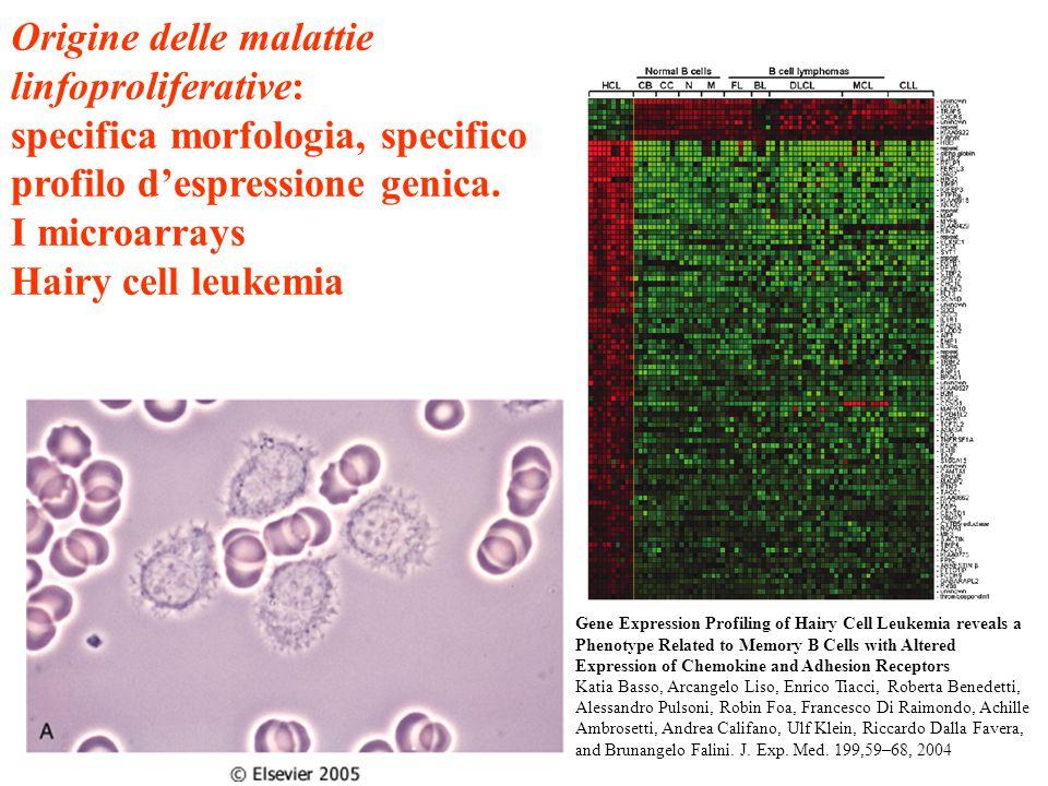 Origine delle malattie linfoproliferative: