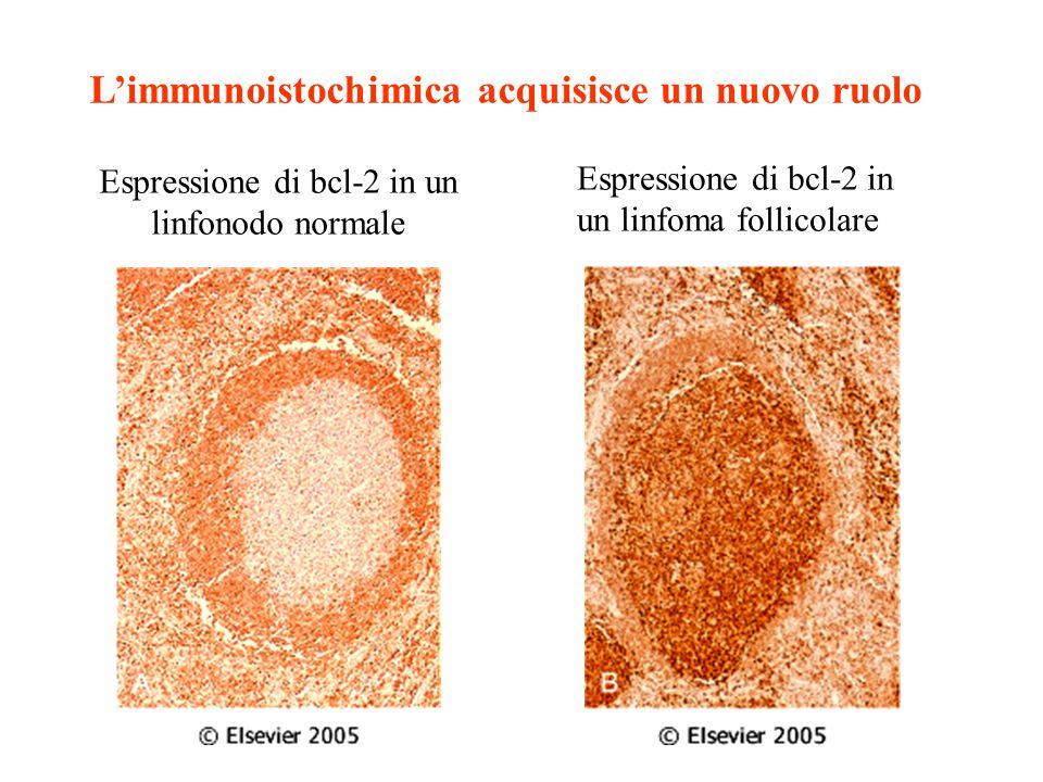 Espressione di bcl-2 in un linfonodo normale