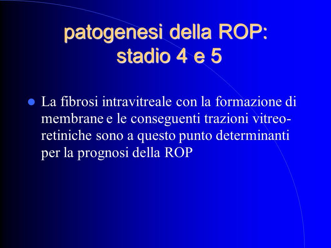 patogenesi della ROP: stadio 4 e 5