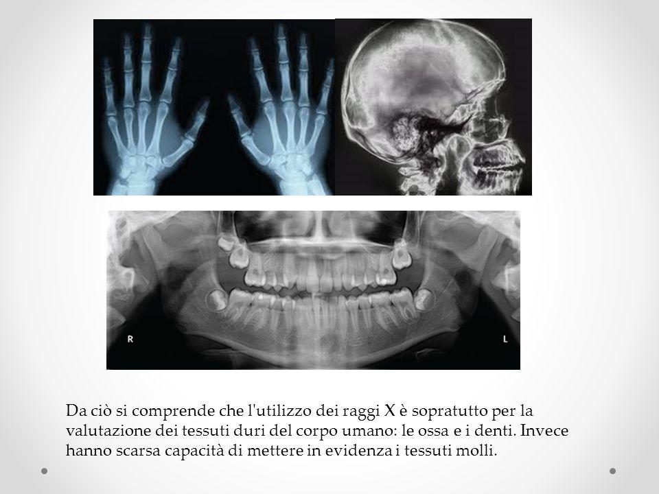 Da ciò si comprende che l utilizzo dei raggi X è sopratutto per la valutazione dei tessuti duri del corpo umano: le ossa e i denti.