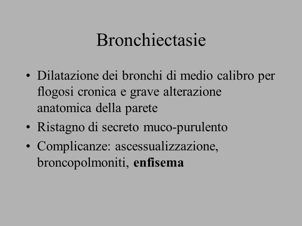 Bronchiectasie Dilatazione dei bronchi di medio calibro per flogosi cronica e grave alterazione anatomica della parete.
